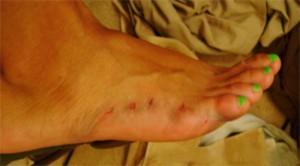 Bethany Edmund's bitten foot